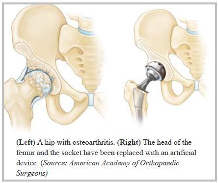 Total Joint Replacements Mid Tennessee Bone Joint Clinic