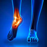 Foot Ankle lead article photo 2